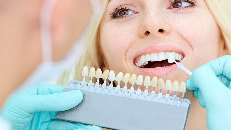 Ästhetische Zahnheilkunde CEREC