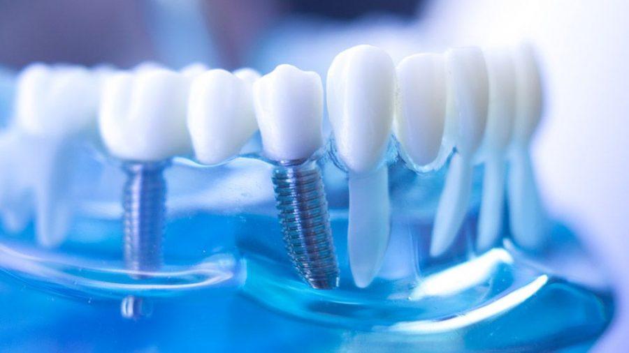 Zahnersatz auf Implantaten